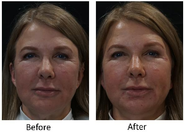 Injectables, Dermal Fillers Before and After