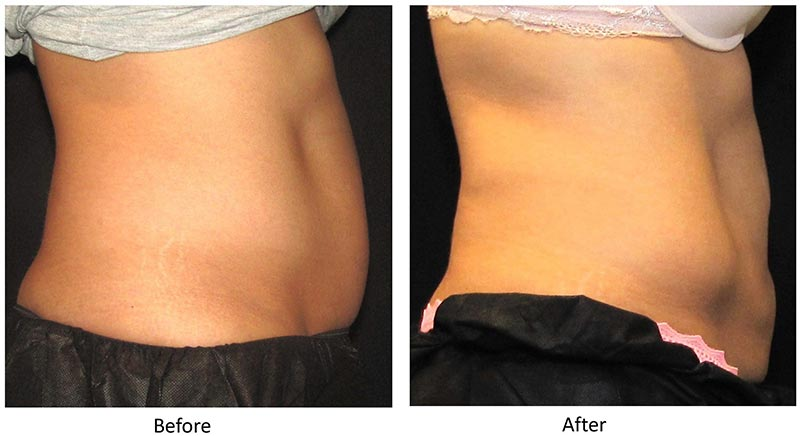 Before and After CoolSculpting®